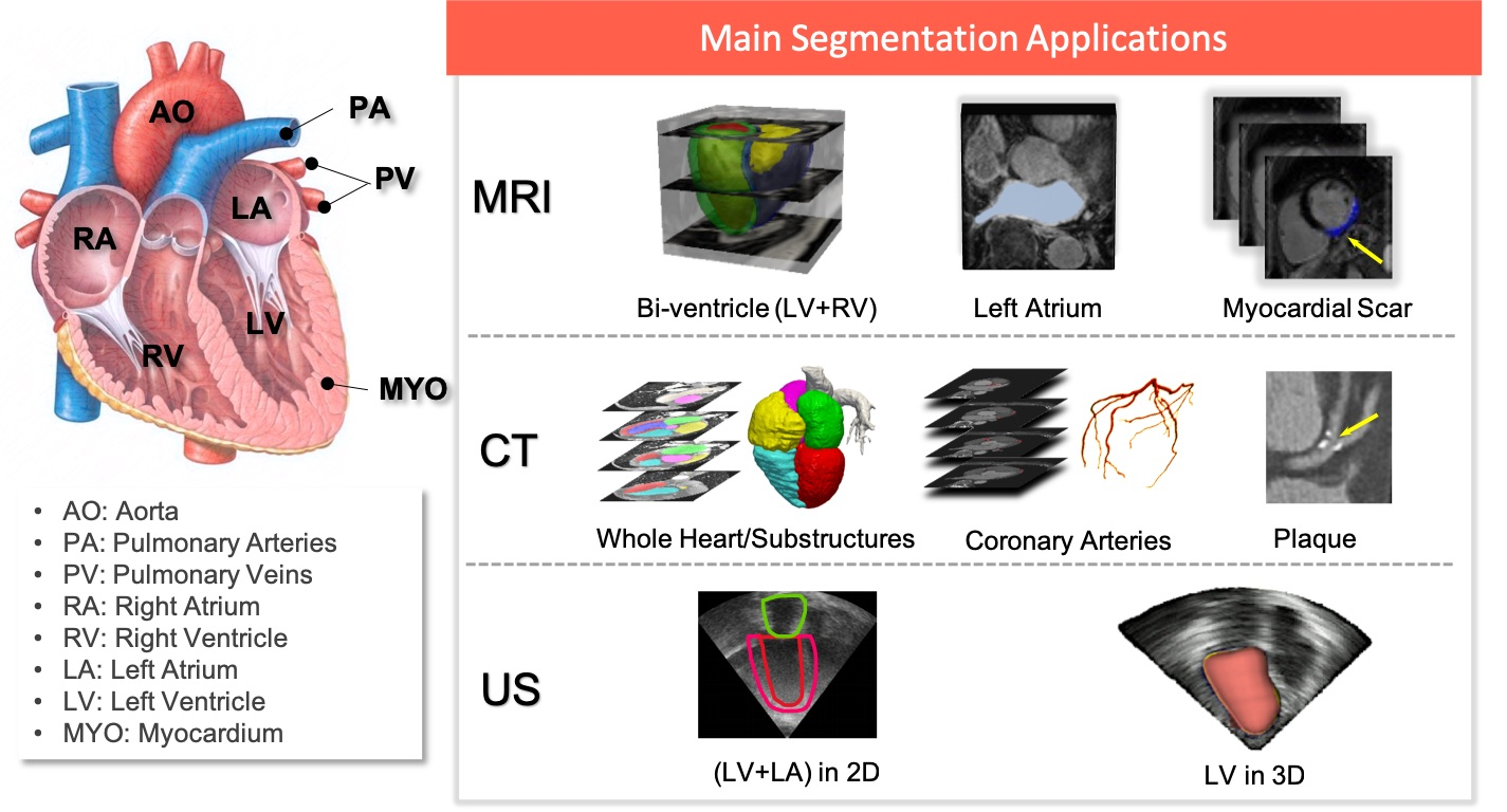 Deep learning for cardiac image segmentation: A review.