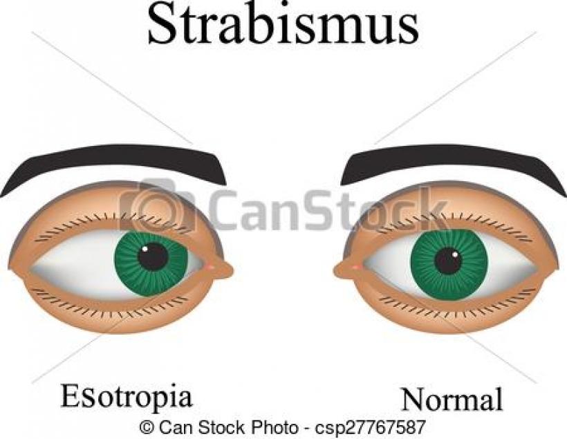 eyes diseases clipart eyes diseases clipart vector of diseases of.