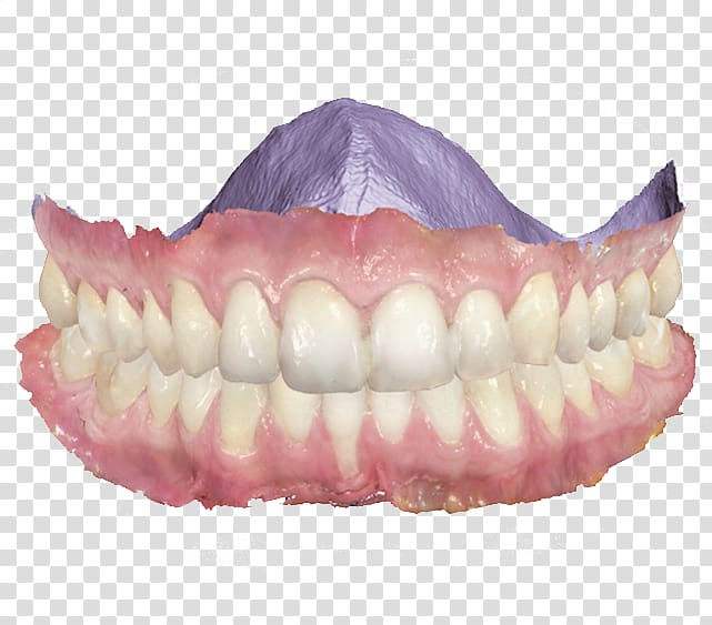 Scanner Dentistry 3Shape Patient, divider transparent.