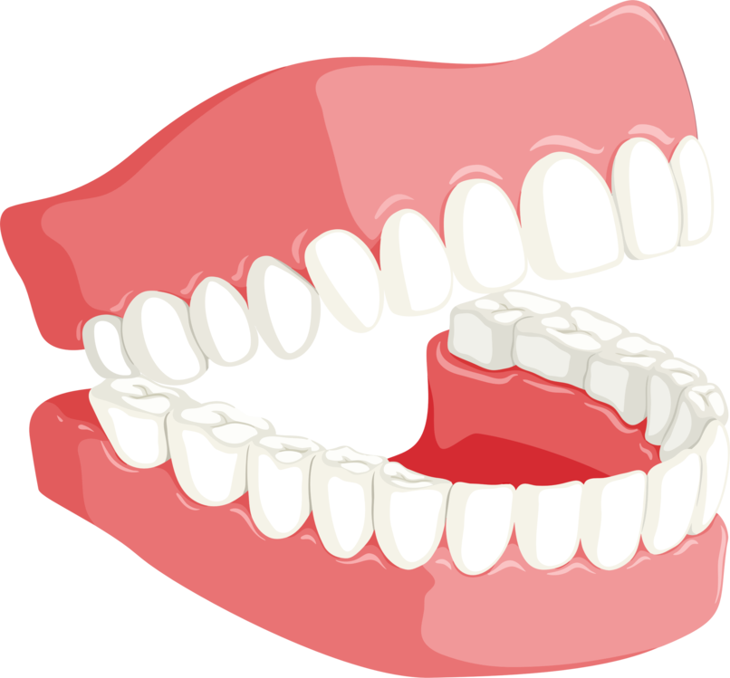 Dentures,Organ,Jaw PNG Clipart.