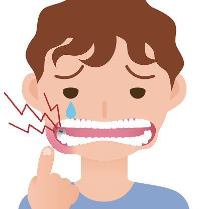 toothache, hurts of bad tooth, stomatitis, mouth ulcer.