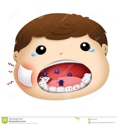 Free clipart toothache.