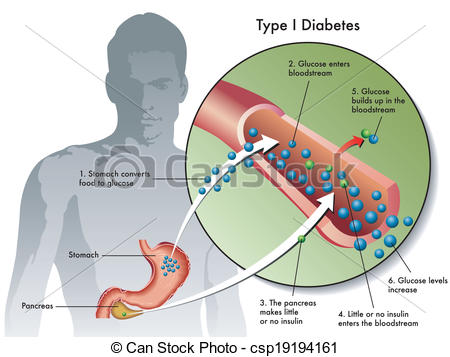 Clip Art Vector of type 1 diabetes.