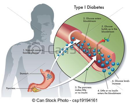 Clip Art Vector of type 1 diabetes.