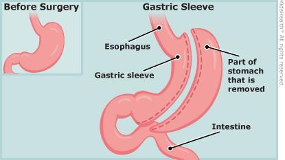 Weight Loss Surgery (Bariatric Surgery).