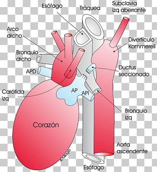 Aortic Arch PNG Images, Aortic Arch Clipart Free Download.