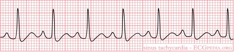Interpret EKGs Strips Like a Boss! (ekg interpretation for.