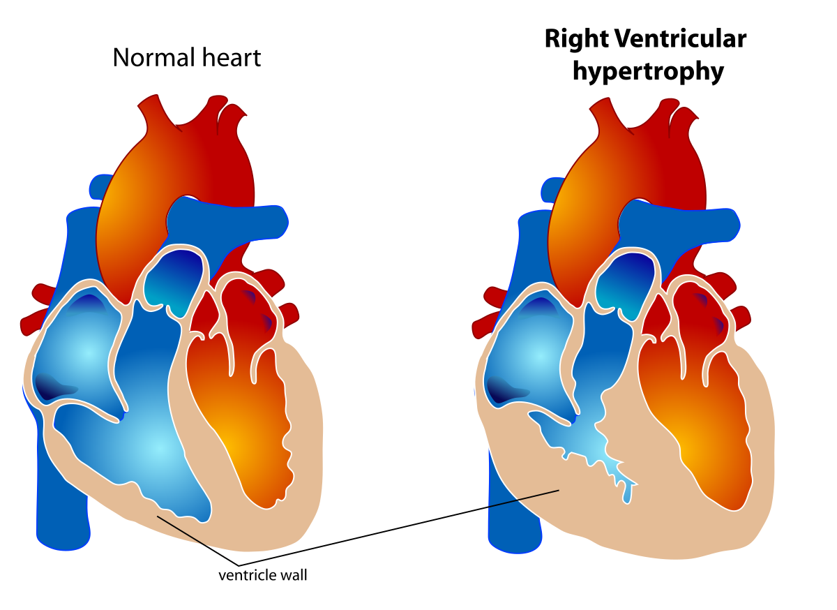 Right ventricular hypertrophy.