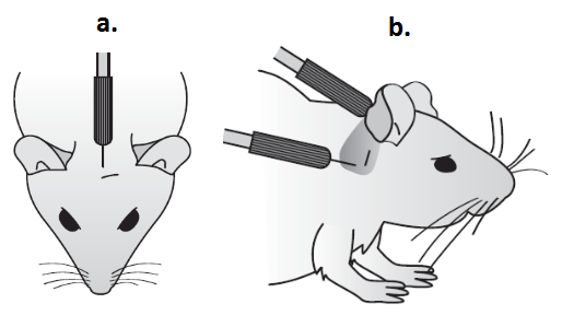 Auditory Brain Stem Response Protocol.