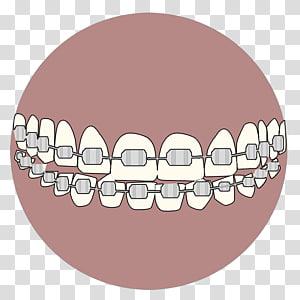 Dental Abrasion transparent background PNG cliparts free.