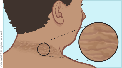 Acanthosis Nigricans Clipart.