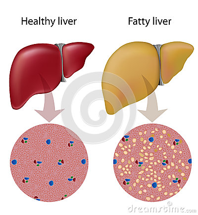 Liver Disease Ribbon Clipart.