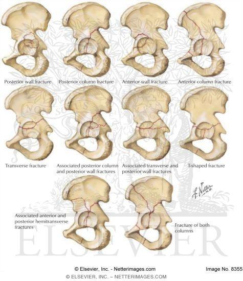 Fractures.
