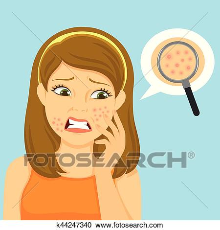 Girl with acne Clipart.