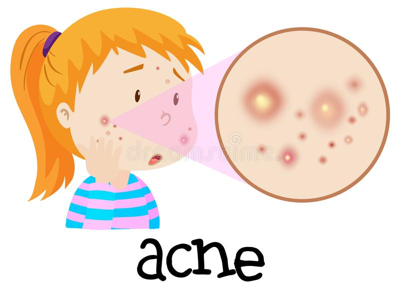 Acne Stock Illustrations.