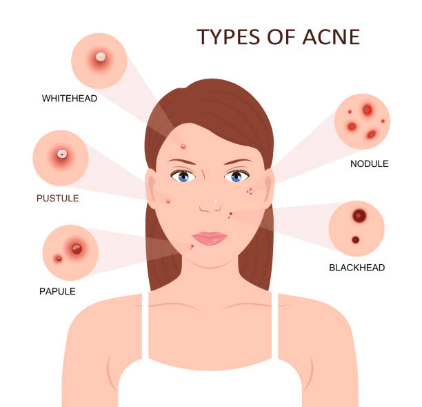 Best Acne Illustrations, Royalty.