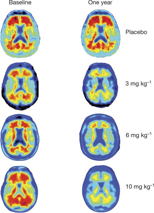 The antibody aducanumab reduces Aβ plaques in Alzheimer\'s.