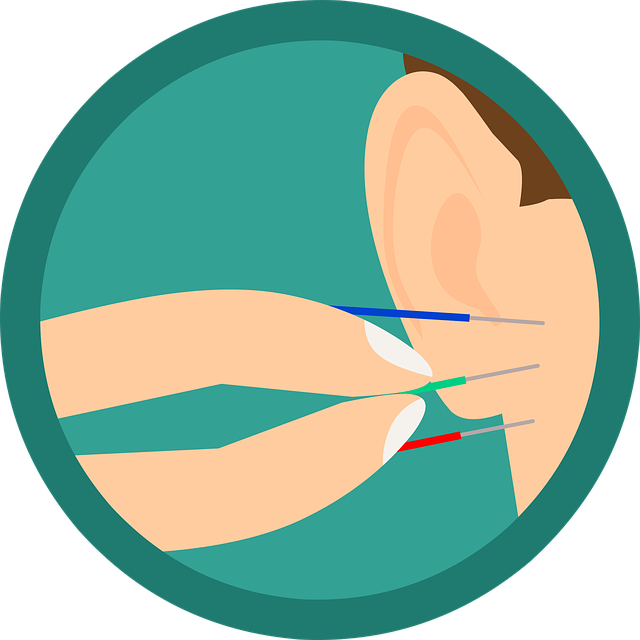 Acupuncture Ear Needles.