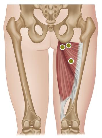 Treating the Hip Adductors.