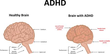2,221 Adhd Stock Vector Illustration And Royalty Free Adhd Clipart.