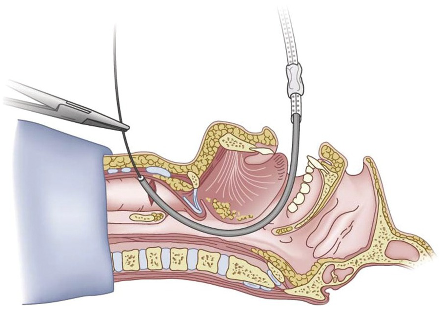 Hybrid Approaches to the Difficult Pediatric Airway (Chapter.