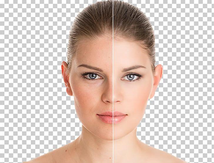 Chemical Peel Exfoliation Rhytidectomy Laser Hair Removal.