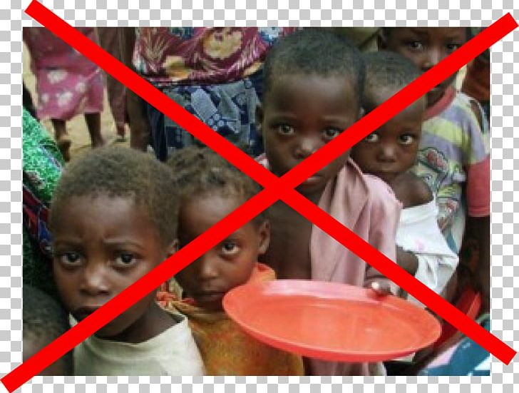 East Africa Hunger Starvation Child Poverty PNG, Clipart.