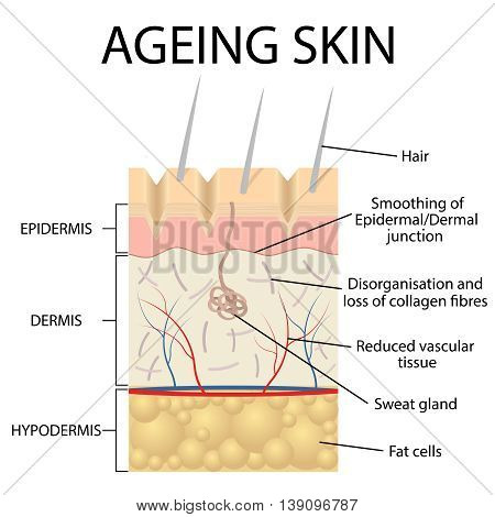 Old skin anatomy characterized by presence of age spots and.