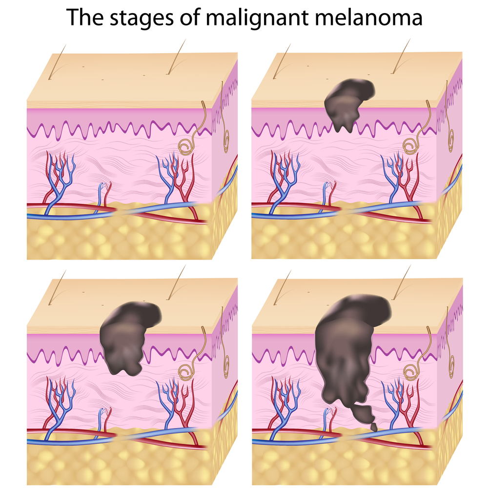 Melanoma and Age Spots: Treatment for Mature Skin.
