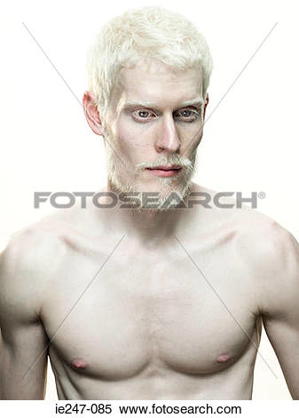 Stock Image of Portrait of an albino man ie247.