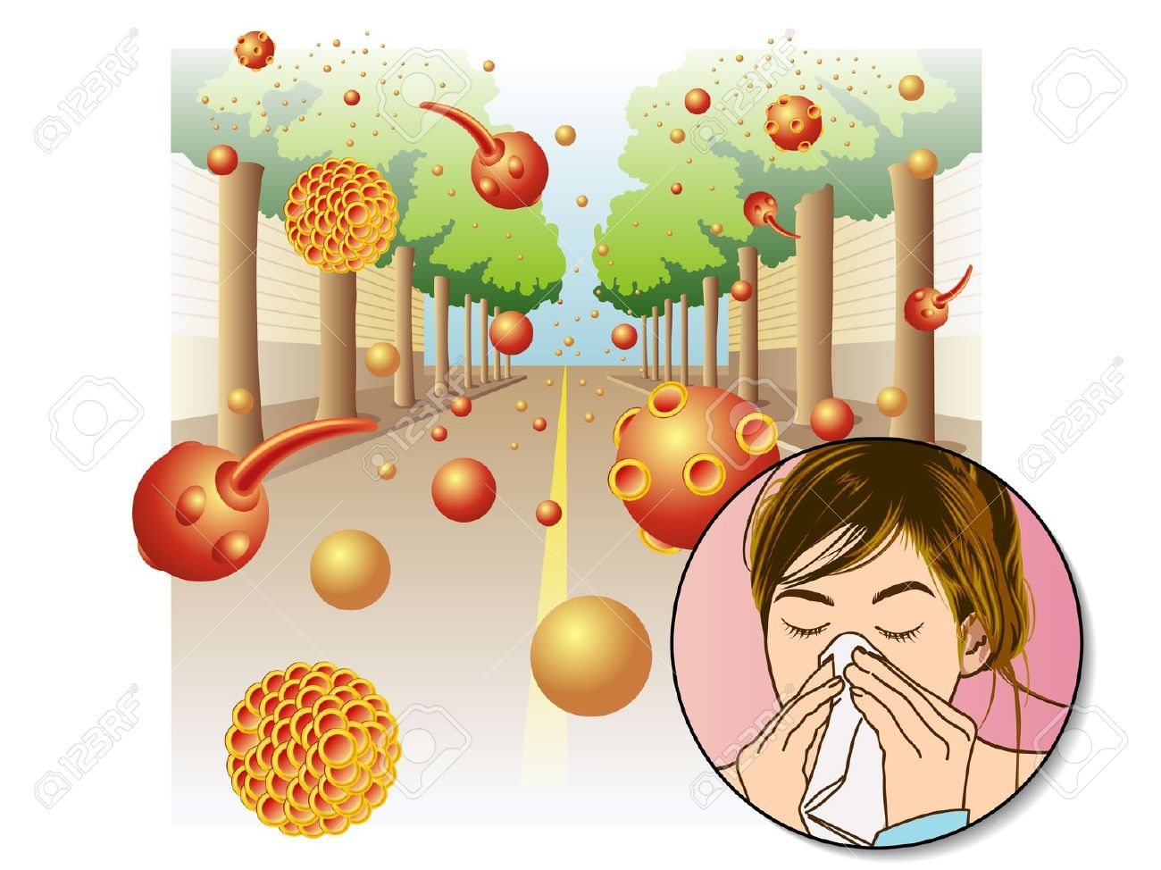 Allergic Rhinitis Clipart Clipground