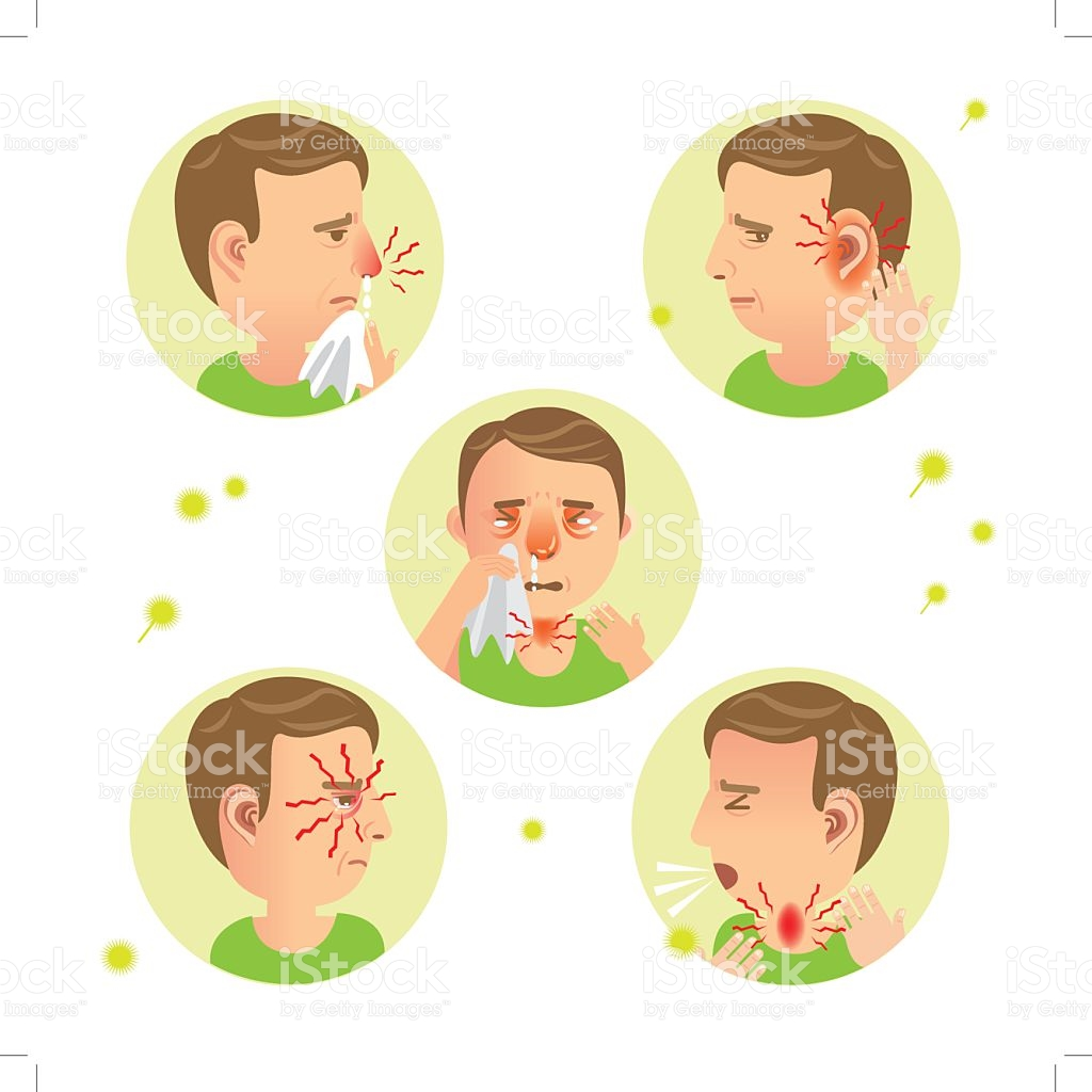 Allergic Rhinitis stock vector art 606193480.