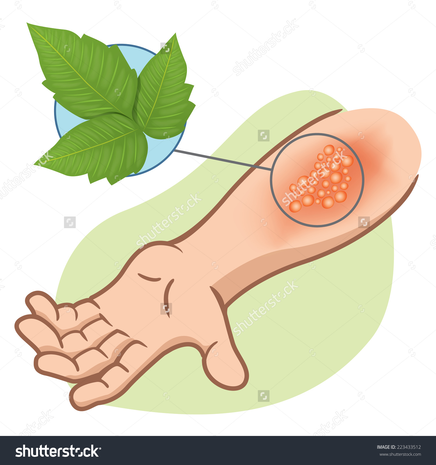 Allergy plant clipart #4