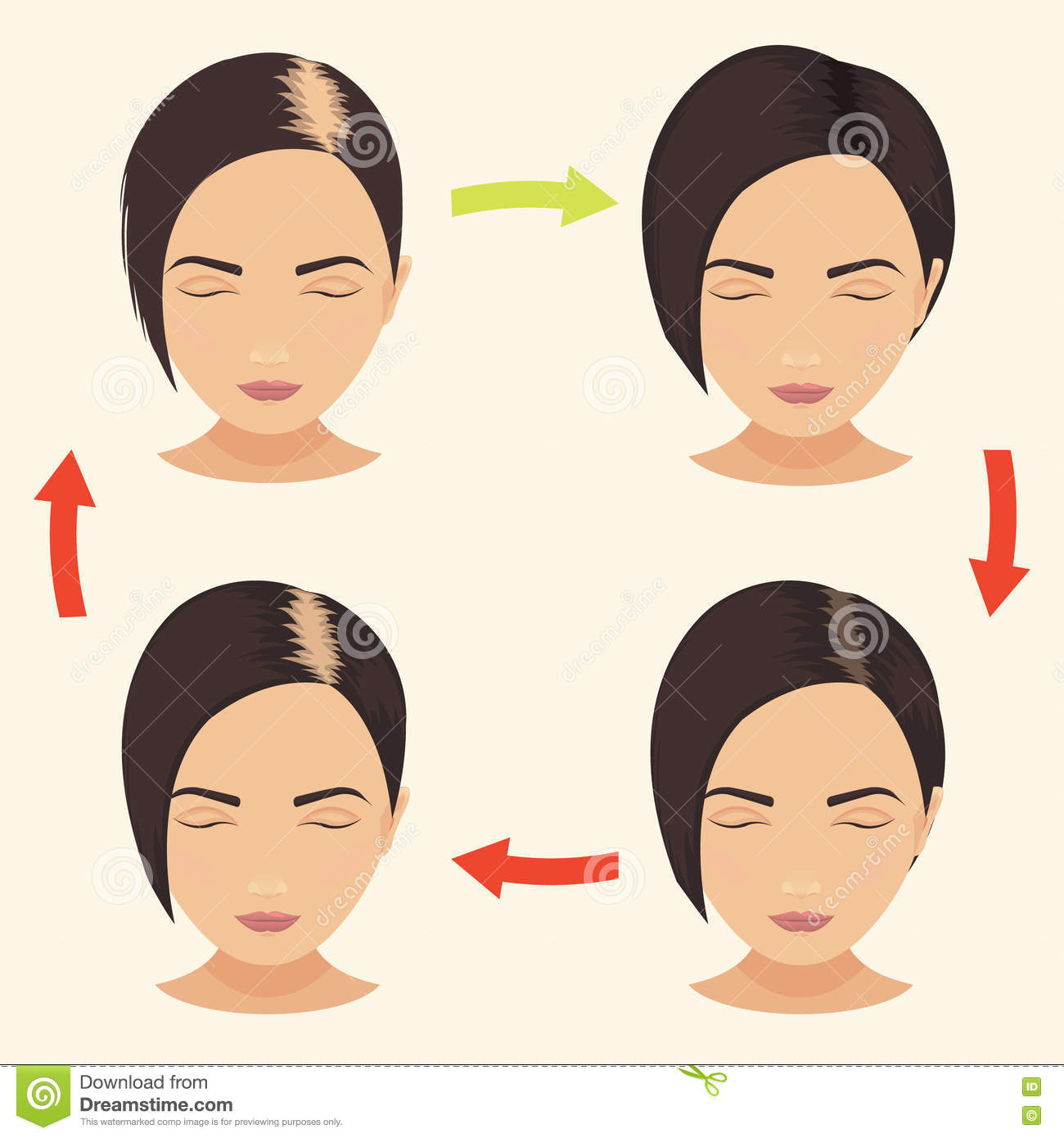 Alopecia clipart #15