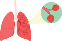 Search Results for alveoli bronchus lung.