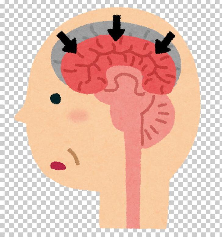 Alzheimer\'s Disease Dementia With Lewy Bodies Vascular.