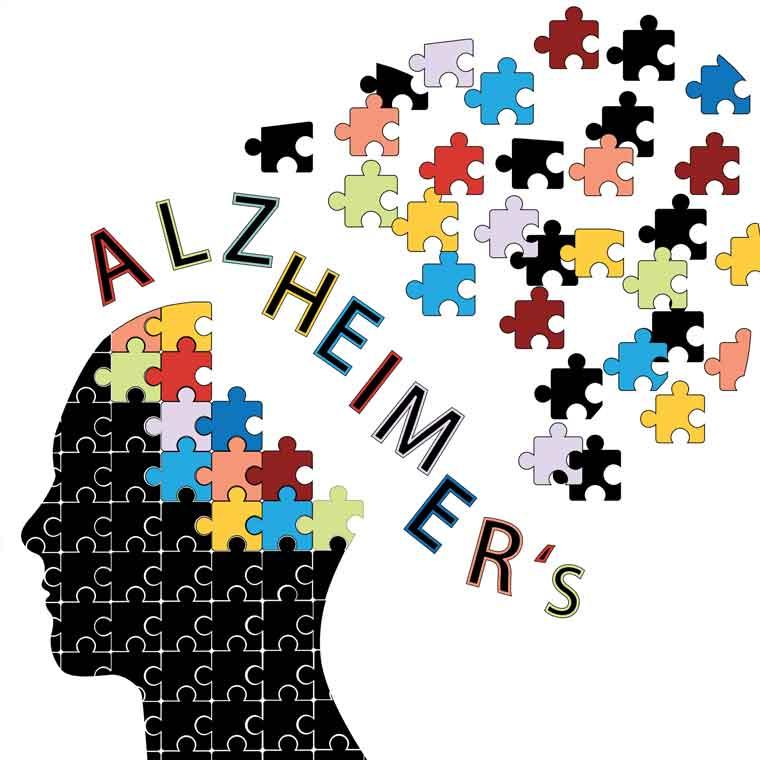Alzheimer\'s Disease Deaths Increased 55% Since 1999.
