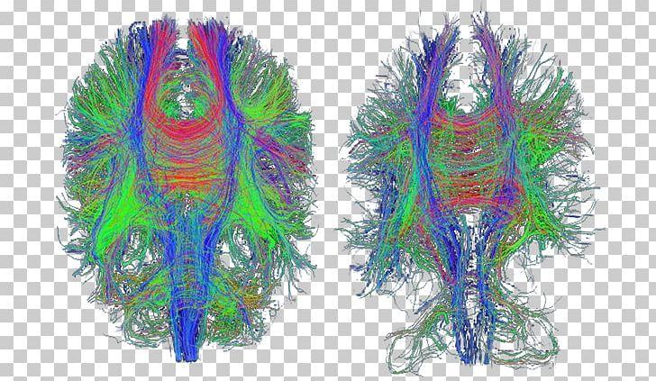 Traumatic Brain Injury Diffusion MRI Alzheimer\'s Disease.