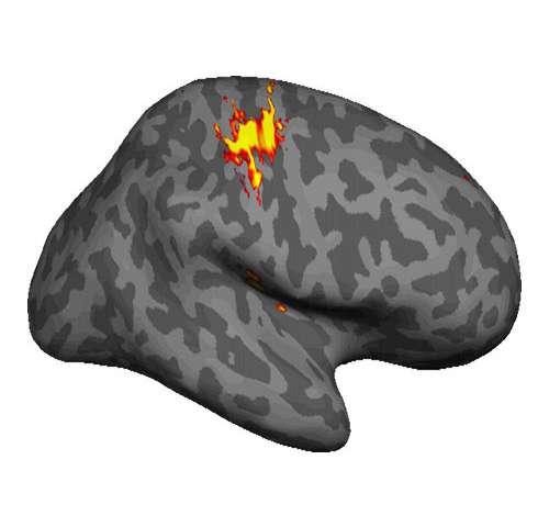 Amputee phantom pain linked to brain retaining picture of.