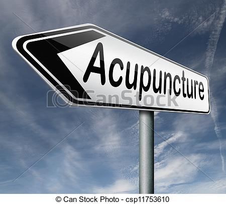 Clipart of acupuncture an alternative medicine with needles.