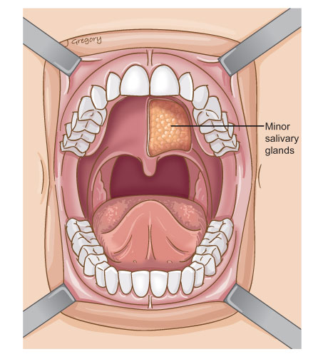 Anatomy of Oral Salivary Gland Cancer.