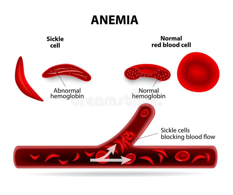 Anemia Stock Illustrations.