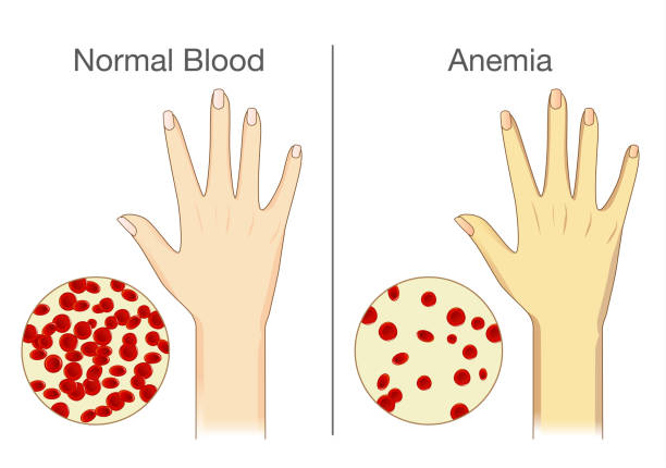 Best Anemia Illustrations, Royalty.