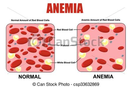Anemia Illustrations and Clipart. 954 Anemia royalty free.