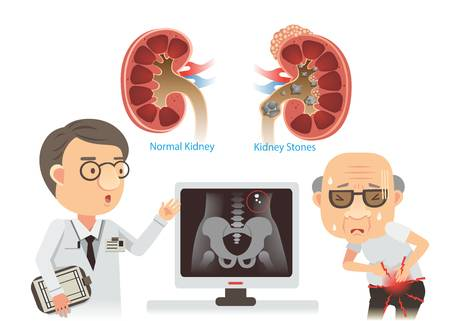 13,538 Kidney Stock Illustrations, Cliparts And Royalty Free Kidney.