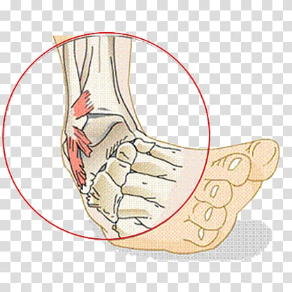 Sprained ankle Ligament Injury, others transparent.