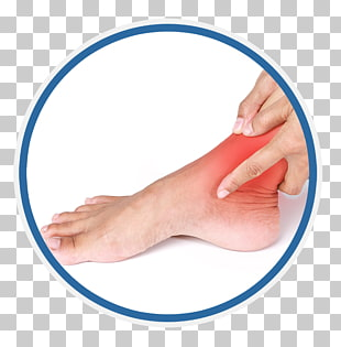 45 sprained Ankle PNG cliparts for free download.