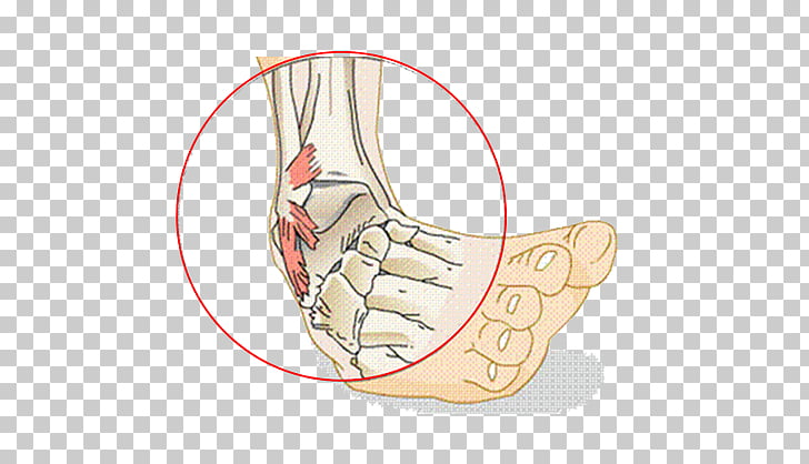 Sprained ankle Ligament Injury, others PNG clipart.
