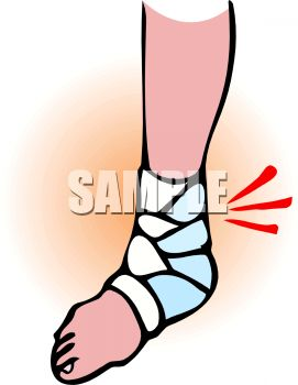 Sprained ankle clipart 8 » Clipart Station.