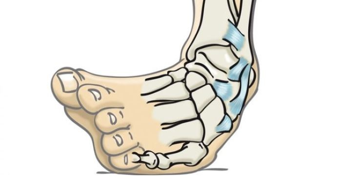 Ankle sprain, prevention, causes and treatments.